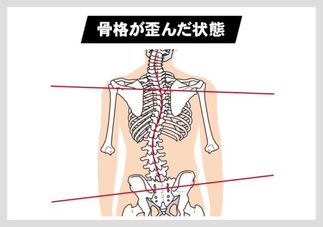 筋肉の硬化・弱化